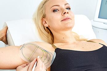 Kollerbeauty Hyperhidrose Behandlung Linz gegen Achselschweiss. miraDry Behandlung Linz