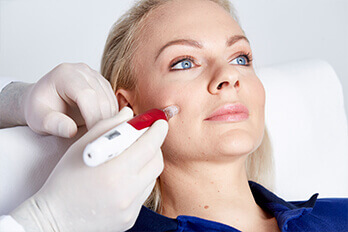Kollerbeauty Behandlung Microneedling, Microneedling Behandlung Linz