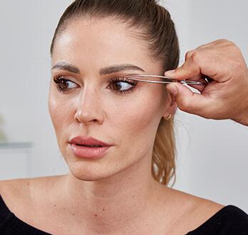 Augenlidstraffung / Augenlidkorrektur – nach dem Eingriff. Schlupflider Operation