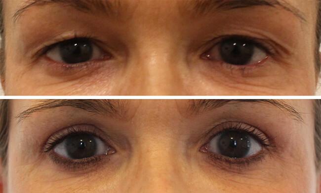 Augenlidstraffung Vorher Nachher Bild Dr. Koller. Vorher-Nachher Bild Lidkorrektur