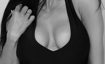 Brustvergrößerung bei Sportlerinnen – bei relativ viel eigenem Brustgewebe