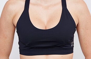 Brustverkleinerung für eine optimale Brust. Busen verkleinern in Linz beim Spezialisten für Brustvergrößerung in Linz