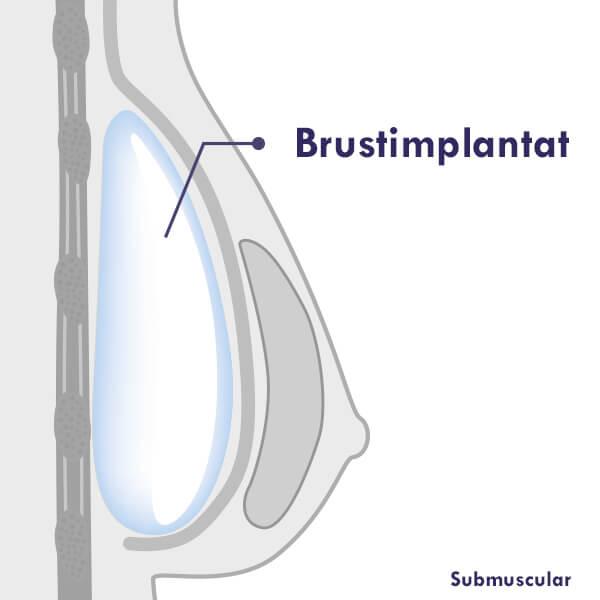 Brustvergrößerung Submuscular, Brustimplantate bei Brustvergrößerung unter dem Brustmuskel eingesetzt.