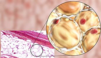Fettabsaugen, Problemzonen. Fettzellen absaugen in Linz. Dauerhafte Fettabsaugung Linz