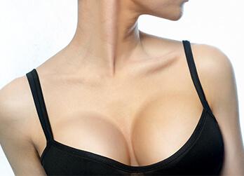 Asymmetrische Brüste korrigieren in Linz. Korrektur Brustasymmetrie Linz Dr. Koller. Korrektur zwei ungleicher Brüste, asymmetrische Brüste korrigieren