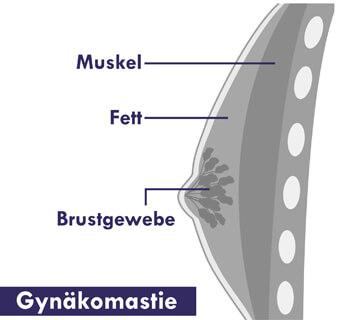 Gynäkomastie OP - weibliche Männer Brust. Grafik einer weiblichen Männerbrust mit Brustdrüsen Gewebe. Gynäkomastie OP Linz bei Dr. Koller