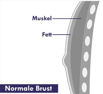 Gynäkomastie OP normale Brust. Grafik einer normalen Männerbrust ohne Fettgewebe. Dr. Koller