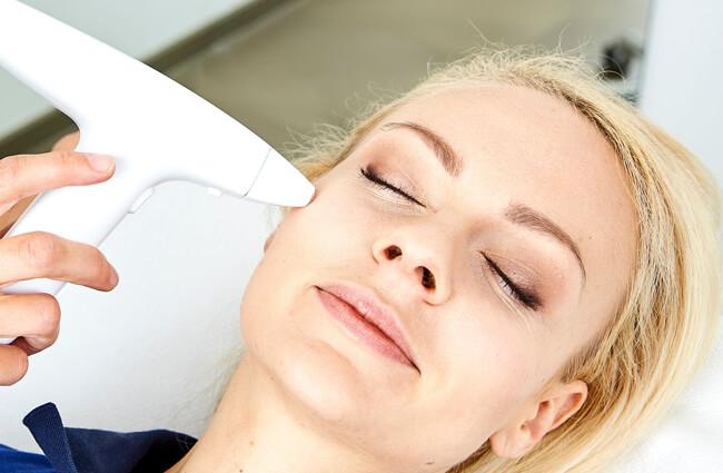 Laserbehandlung / Narben und Aknenarben entfernen