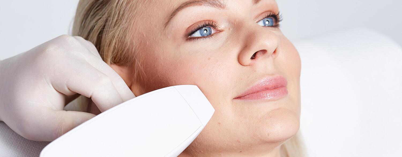 Aknenarben entfernen Linz. Aknenarbenkorrektur, Akne Behandlung Linz. Aknenarben weglasern