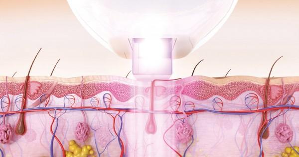 Medizinische Laser Haarentfernung durch intensiv gepulste Lichttechnologie (IPL) mit SmartPulse™ dringt durch die Haut und zerstört den Haarfollikel.
