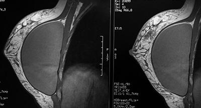 Brustimplantate und Röntgen – Brustuntersuchung nach Brustvergrößerung / Bruststraffung. Brustvergrößerung Linz