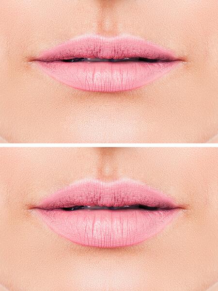 Lippen aufspritzen Linz, Lippen vergrößern, Lippen konturieren, Lippenvolumen, Hyaluronsäure Injektionen, Lip Filler