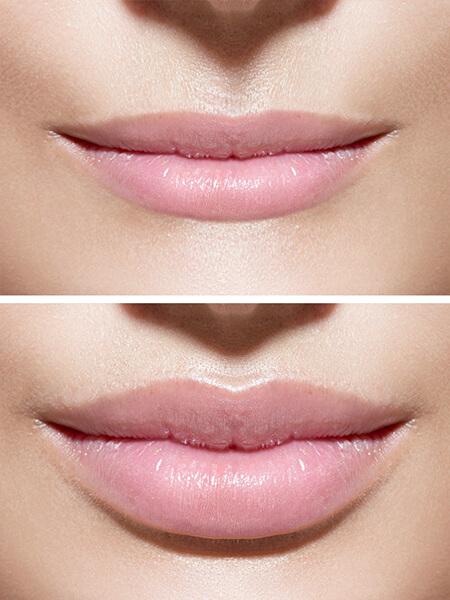 Lippen vergrößern, Lippen konturieren, Lippenvolumen, Hyaluronsäure Injektionen, Lip Filler, Lippenkorrektur, Lippenvergrößerung