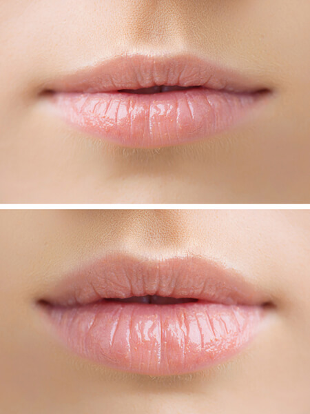 Lippen konturieren, Lippenvolumen, Hyaluronsäure Injektionen, Lip Filler, Lippenkorrektur, Lippenvergrößerung, Lippen Aufspritzung