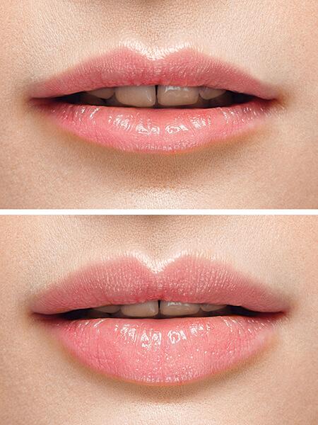 Hyaluronsäure Injektionen, Lip Filler, Lippenkorrektur, Lippenvergrößerung, Lippen Aufspritzung, Lip Filler, Lippen Botox