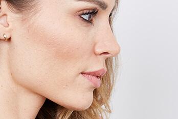 Lippenaufspritzung bei Kollerplast – die angepasste Vorgehensweise je nach Gesichtstyp